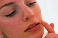 ჰერპესის ვირუსი – მიზეზები, გამოცდილი სამკურნალო რეცეპტები და ექიმის რეკომენდაციებ
