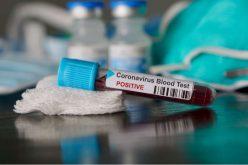 სომხეთში კორონავირუსის დადასტურებული შემთხვევების რაოდენობა 25-ით გაიზარდა.