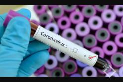 პირველ საუნივერსიტეტო კლინიკაში ლუგარის ლაბორატორიიდან რამდენიმე ორსულის ტესტის პასუხებს ელოდებიან.